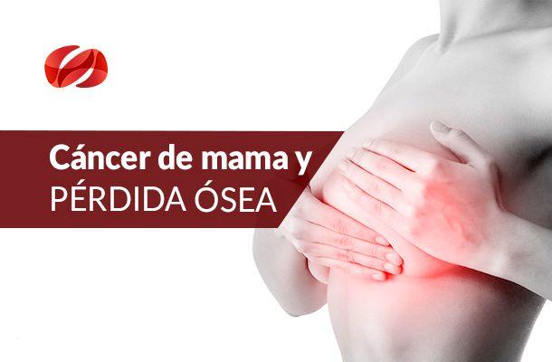 cancer y osteop 0