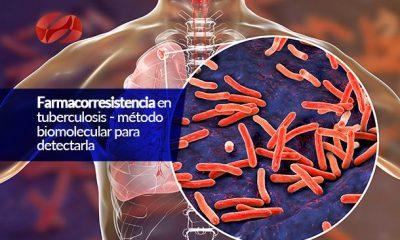 farmacorresistencia en tuberculosis metodo biomolecular para detectarla
