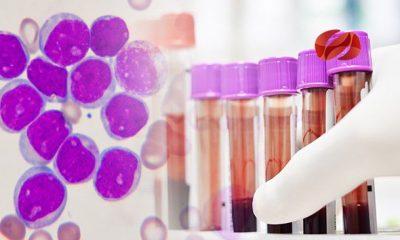 oms alerta sobre iclusig e iclusig falsificado para tratamiento de leucemia