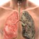 crean nuevo software permite detectar el cancer de pulmon