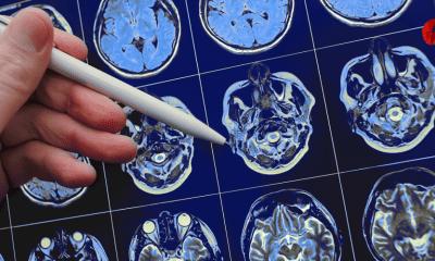 la epilepsia y el gran desafio que enfrenta america latina