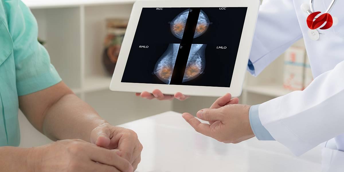 FDA aprueba el uso de atezolizumab para el cáncer de mama triple negativo