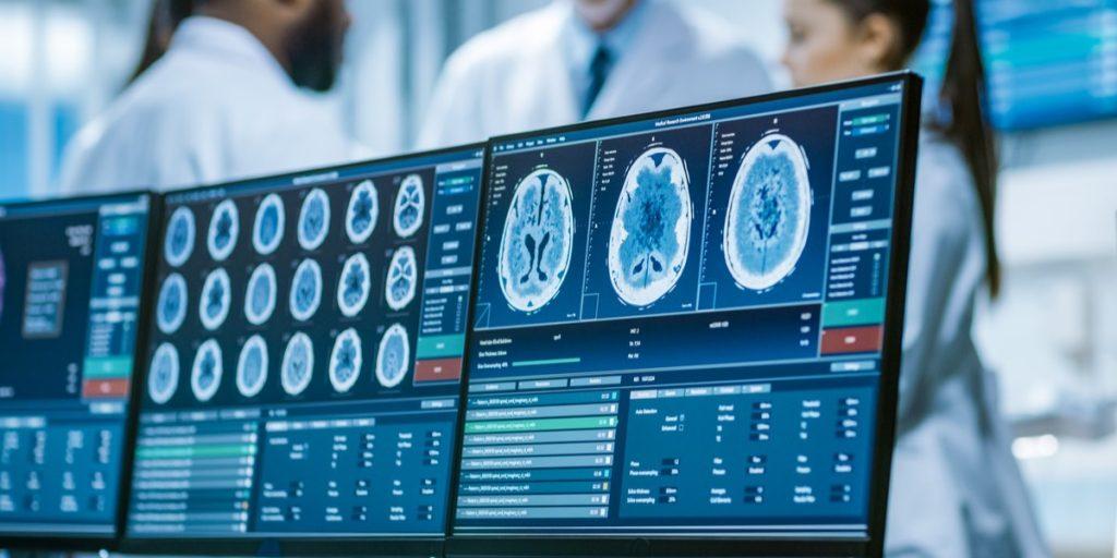 Retos de la neurociencia