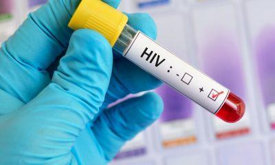 Colombia recibirá US$10 millones para atención de VIH