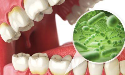 salud bucal deficiente