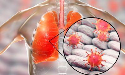 Antibióticos debilitan las defensas de la gripe en el pulmón: Estudio