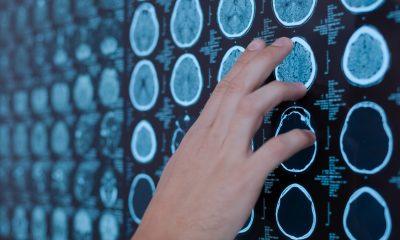 Colesterol muy bajo aumenta riesgo de accidente cerebrovascular hemorrágico