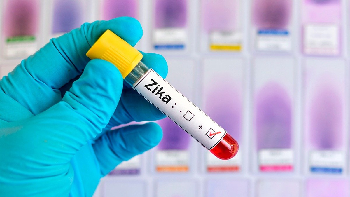 Estudio sobre el Zika
