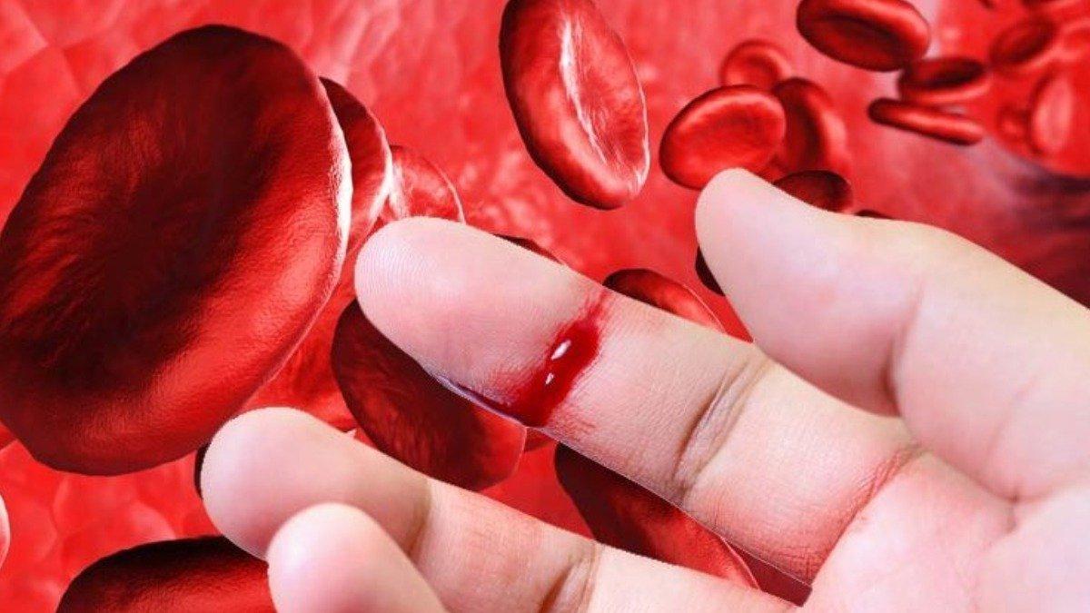 hemofilias 1