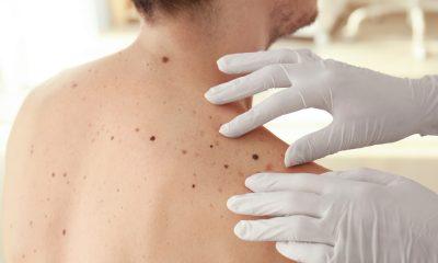 melanoma 1
