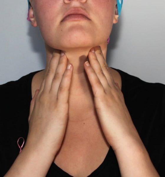 Tratamiento del linfoma de Hodgkin
