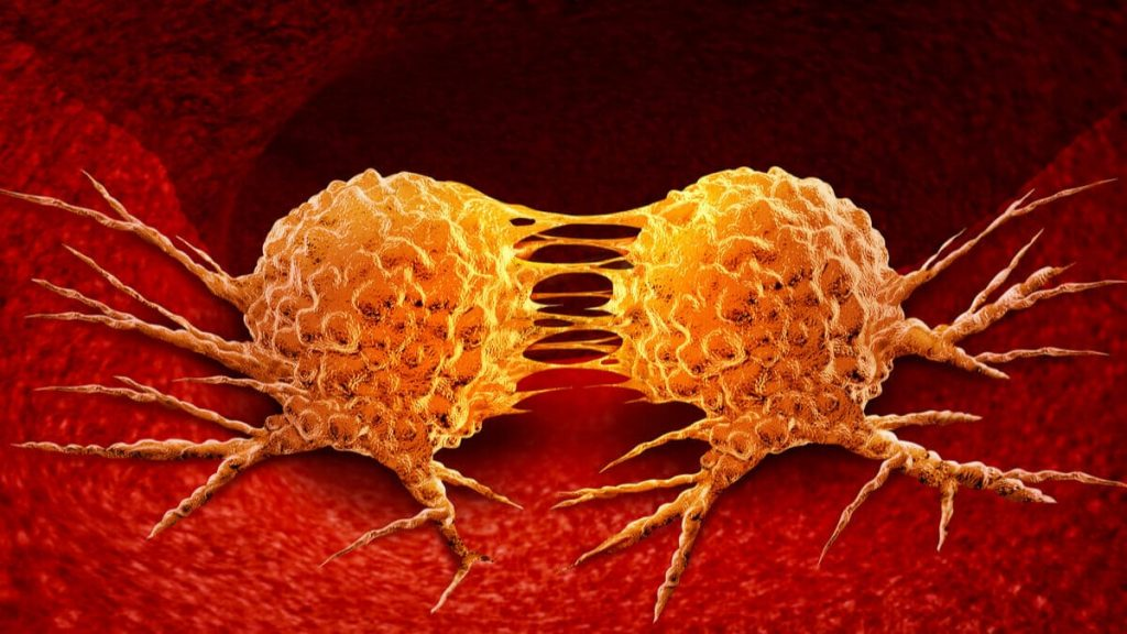 ¿Cómo hacen metástasis las células cancerosas (1)