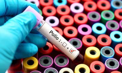 Aumentan casos de polio en el mundo