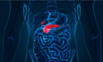 Investigación colombiana para tratar el cáncer gástrico