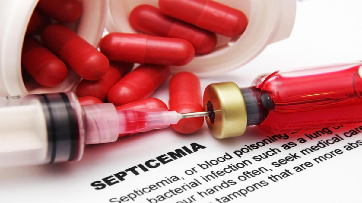 Investigación revela aumento de la septicemia en los últimos años