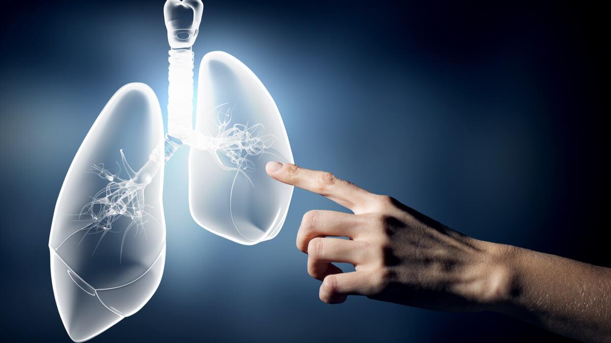 Se expande el registro INVIMA de osimertinib para primera línea de cáncer de pulmón EGFR mutado