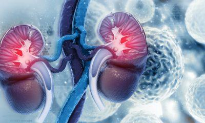 Invima otorgó registro a pembrolizumab, pero no amplía el registro de axitinib para cáncer renal metastásico