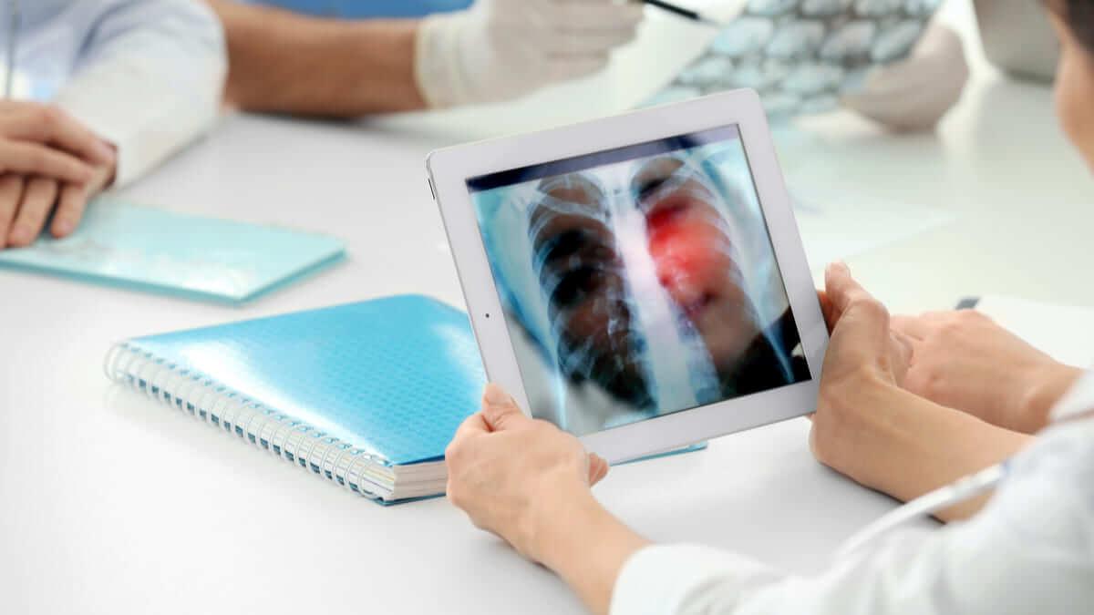 Más sobre la tamización del cáncer de pulmón con tomografía