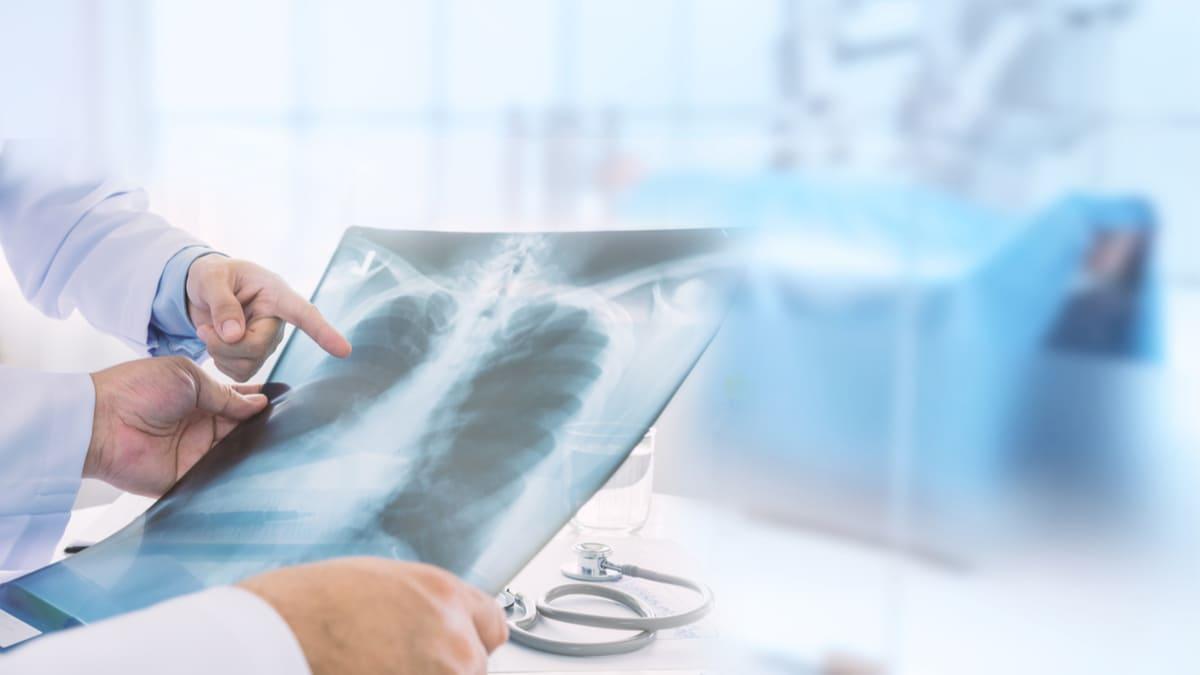 Se aprueba alectinib en Colombia para cáncer de pulmón ALK-positivo