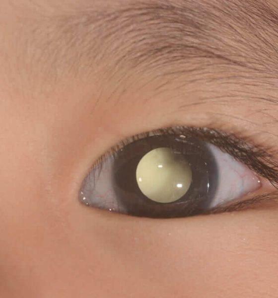 Un virus ayuda a tratar el retinoblastoma en niños