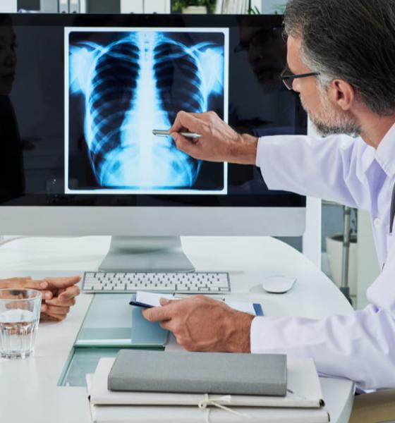 Vigilancia del cáncer de pulmón después de tratamiento con intención curativa