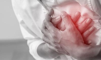 Breve estudio descriptivo del infarto agudo de miocardio en Colombia entre 2015 y 2019