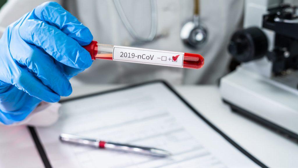 Gobierno Fijó nuevos lineamientos para detección temprana del Covid-19