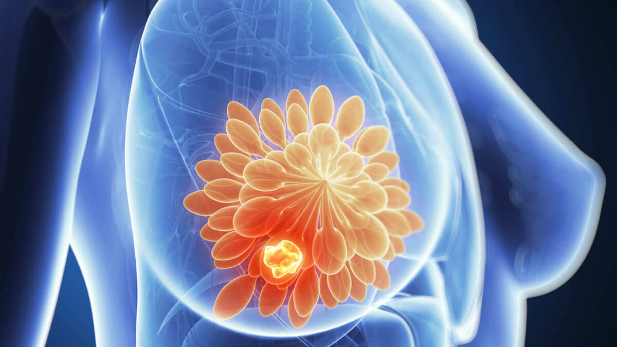 PALB2, otro gen en cáncer de mama hereditario