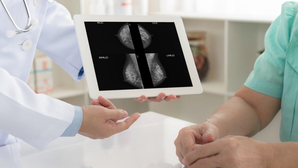Pembrolizumab en cáncer de mama temprano triple negativo