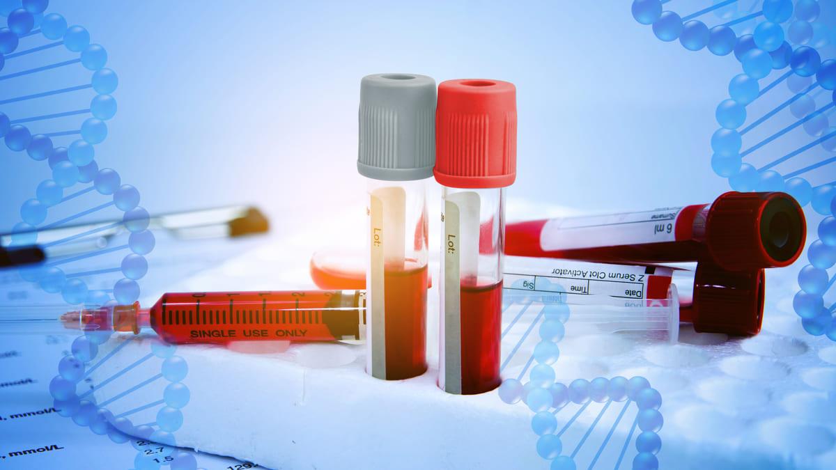 Signos de alarma de la Hemofilia