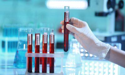 Estudio con plasma convaleciente para tratar el Covid-19 son aprobados por el Invima