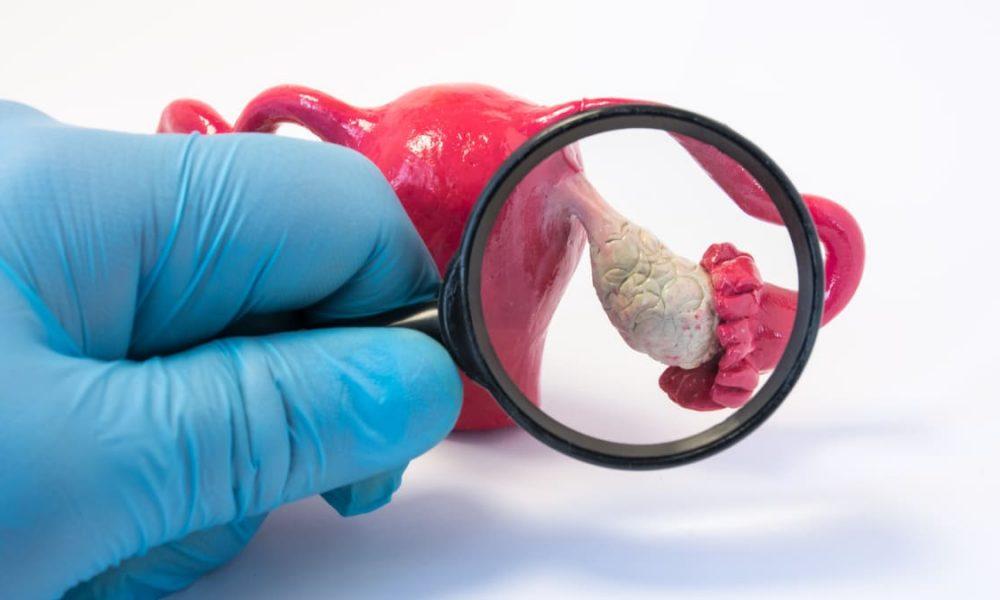 Las diferentes supervivencias en cáncer de ovario - CONSULTORSALUD