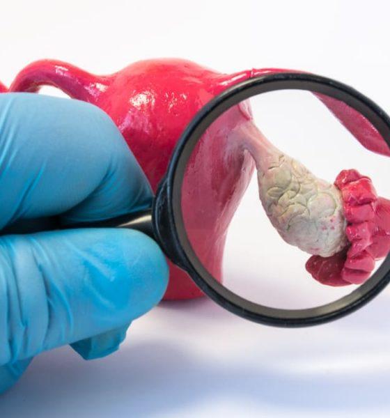 Las diferentes supervivencias en cáncer de ovario