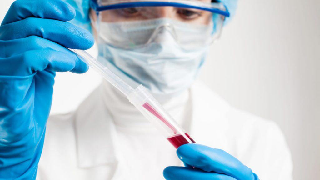 Recomendaciones Para Pacientes Hemofilia y Otras Deficiencias de la Coagulación en Época de Pandemia COVID 19