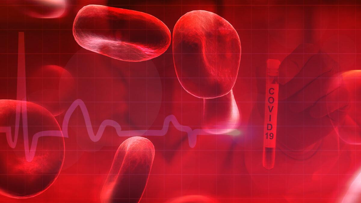 ¿Influye el grupo sanguíneo en la gravedad de los síntomas del Covid-19