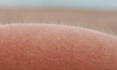 Científicos logran crear piel con vello desde 0