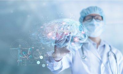 Científicos identifican 10 factores de riesgo para prevenir el alzheimer