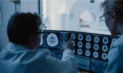 Efectos del Covid-19 en el cerebro
