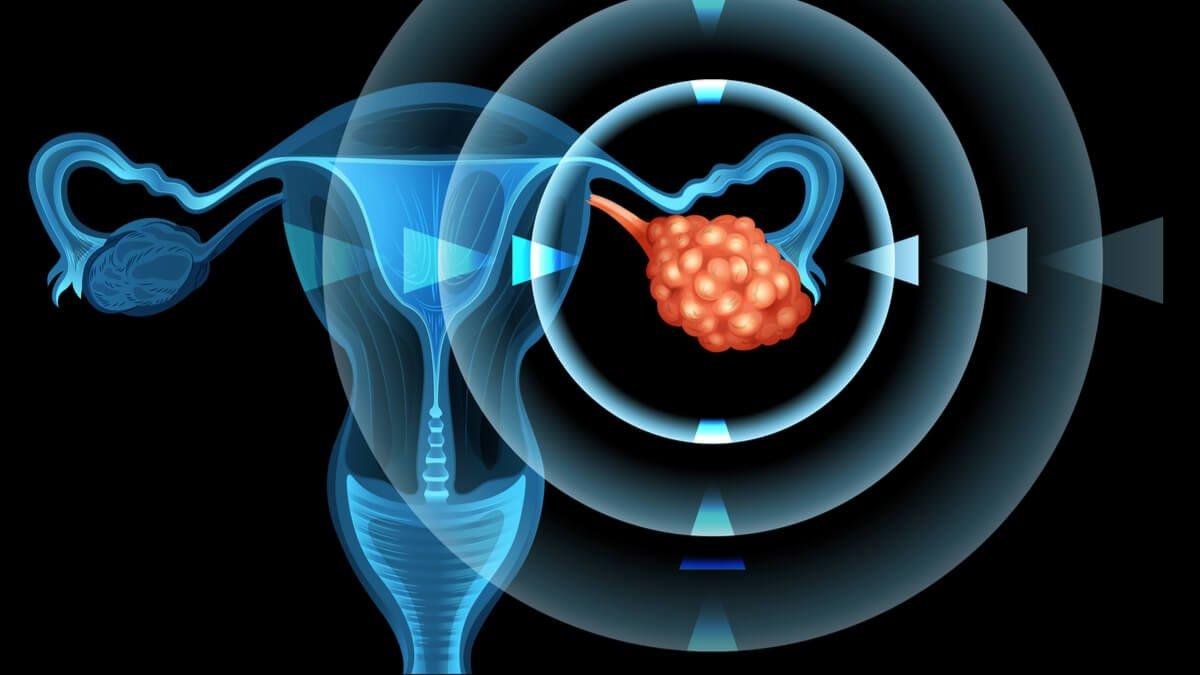 Grasas trans asociadas a un mayor riesgo de cáncer de ovario