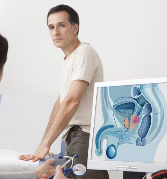 Virus del papiloma humano -VPH-podría causar cáncer de próstata