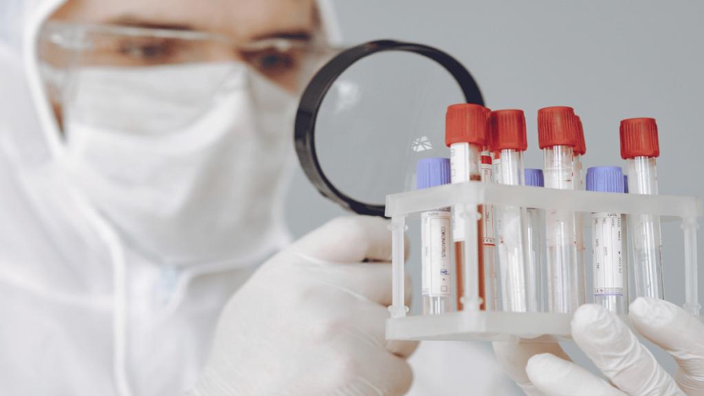 prueba de antígeno