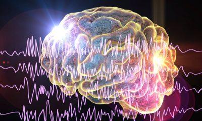 1 de cada 100 personas tiene epilepsia en Colombia