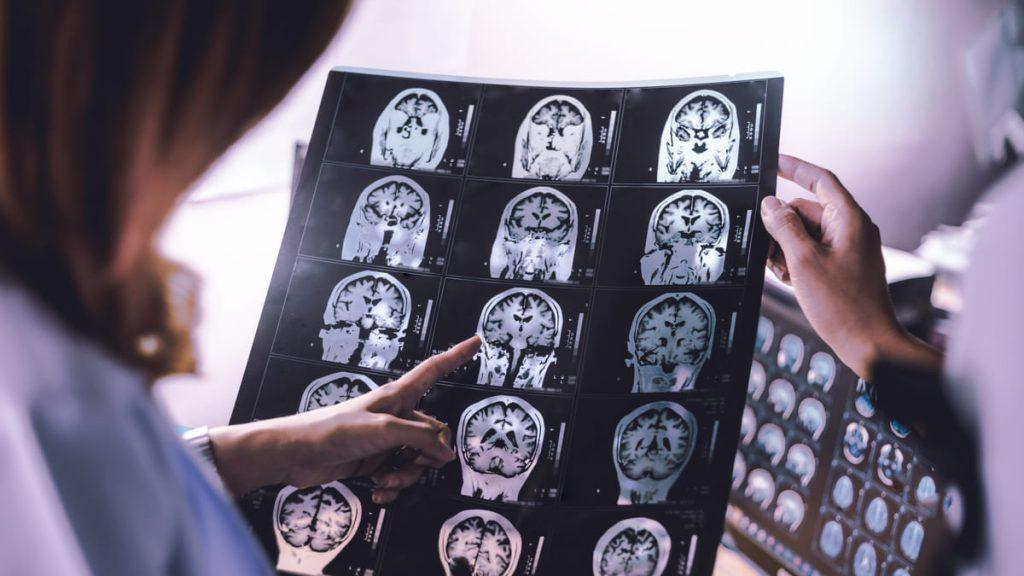 40% casos de demencia son evitables