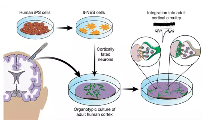 Imagen de referencia neuronas
