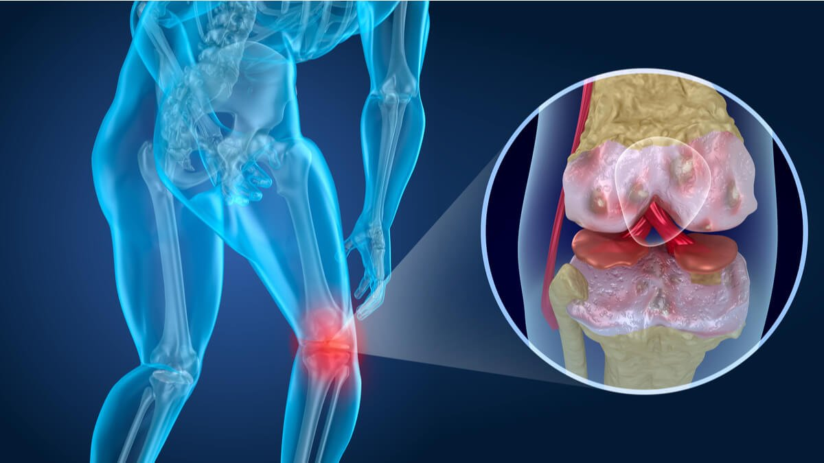 Rejuvenecimiento celular podría revertir la artrosis