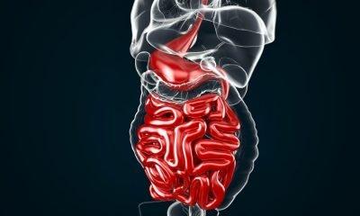Científicos desarrollaron cápsula impresa en 3D que toma muestras del intestino
