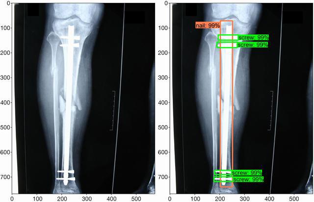 rayos X 1