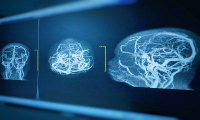 Desarrollan modelo de aneurisma viviente en 3D
