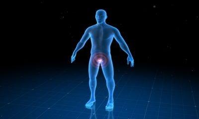 Desarrollan nuevo tratamiento para hiperplasia benigna de próstata