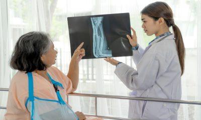 Desarrollan tratamiento experimental para acelerar la curación de fracturas